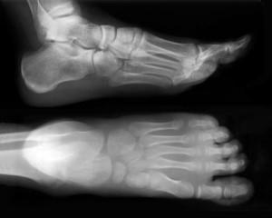 Will Barefoot Running Hurt You?